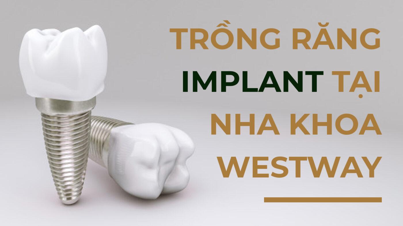 trong_rang_implant