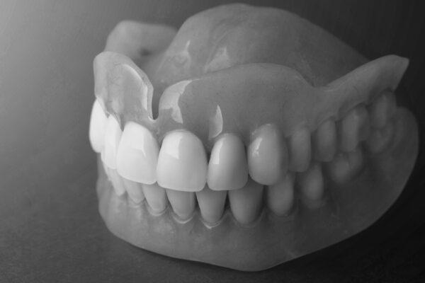 bọc răng sứ emax 1