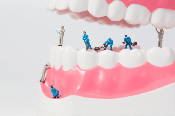 cham_soc_sau_trong_rang_implant