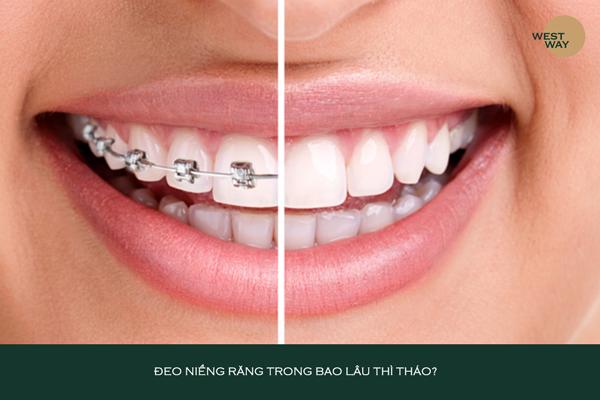 Đeo niềng răng bao lâu thì có thể tháo?
